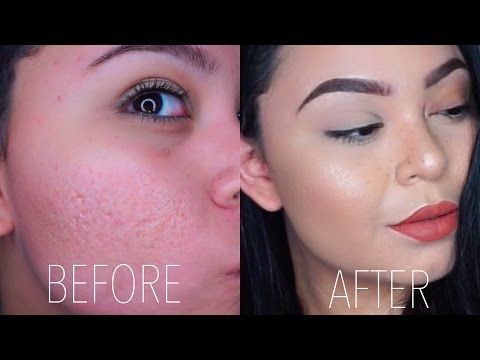 acne cover up makeup tutorial